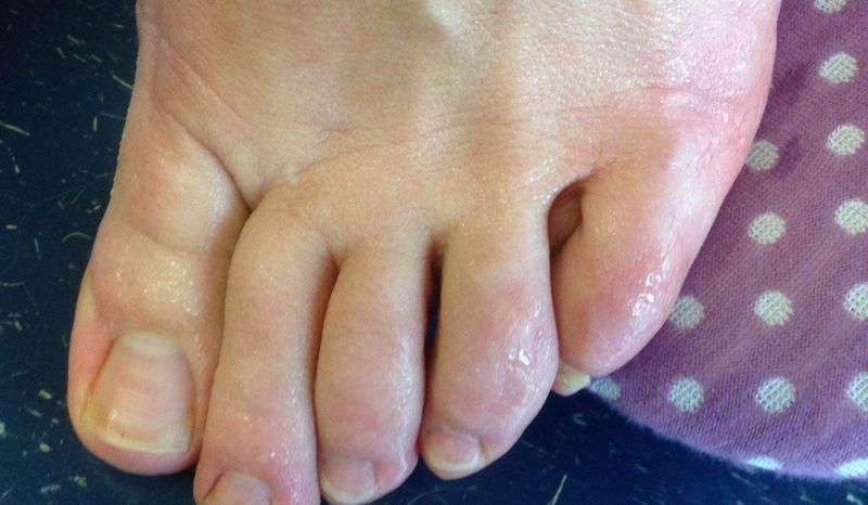 Шелушение между пальцами ног